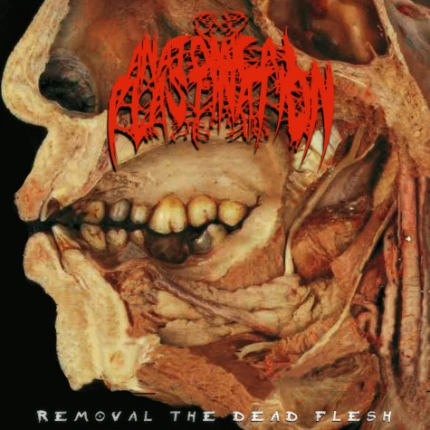 Anatomical Plastination - Removal The Dead Flesh procdr